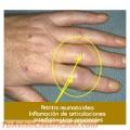 Apiterapia Tratamiento con Abejitas